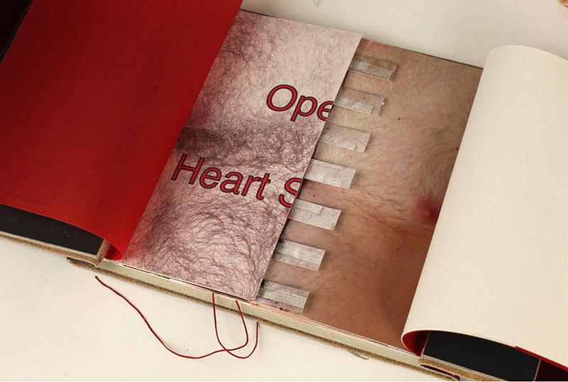 Open-- Heart Surgery